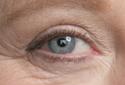 Entenda o câncer de olho