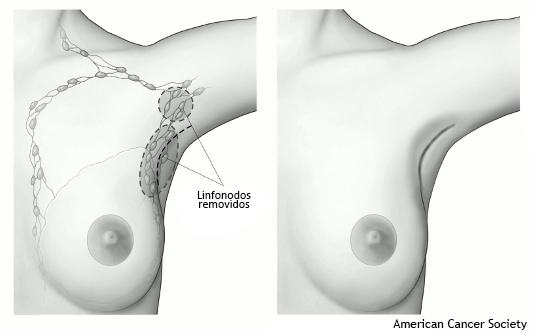 Dissecção Axilar dos Linfonodos