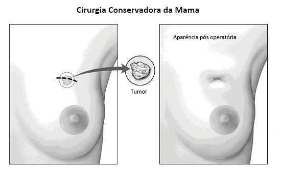 papiloma tratamento mama