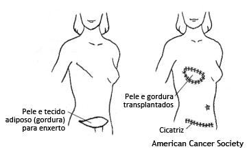 retalho DIEP