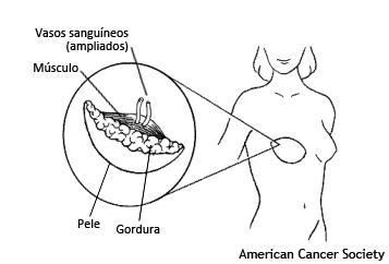reconstrução mamaria