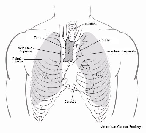 câncer de timo
