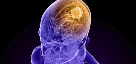A cirurgia é o principal tratamento para o Glioblastoma