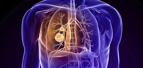 Conheça os tipos do câncer de pulmão