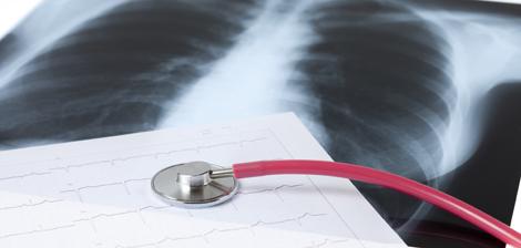 Diagnosticando o câncer de pulmão