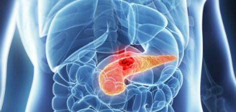 Tumores Neuroendócrinos de Pâncreas