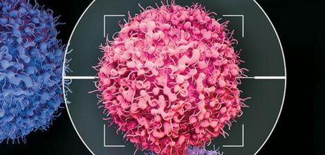 Terapia com células T CAR