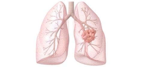 Tumores Neuroendócrinos de Pulmão