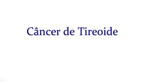 Saiba tudo sobre o Câncer de Tireoide