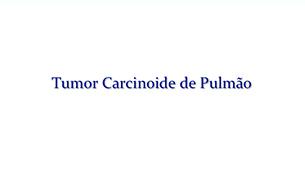 Tudo sobre Tumor Carcinoide de Pulmão