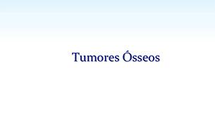 Tudo sobre os Tumores Ósseos