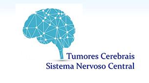 Saiba tudo sobre Tumores Cerebrais/SNC
