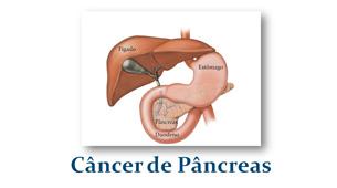 Saiba tudo sobre o Câncer de Pâncreas
