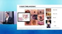 Fórum Melanoma 2018 | Cenário e Prevenção do Melanoma
